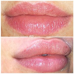M1-Lippenunterspritzung-VorherNachher_1.jpg