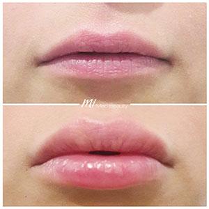 M1-Lippenunterspritzung-VorherNachher_2.jpg