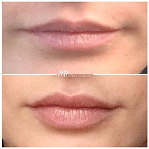 M1-Lippenunterspritzung-VorherNachher_3.jpg