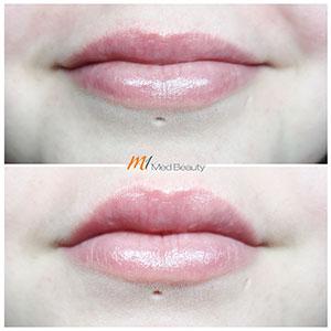 M1-Lippenunterspritzung-VorherNachher_4.jpg