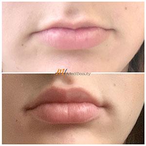 M1-Lippenunterspritzung-VorherNachher_5.jpg