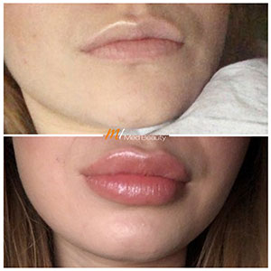 M1-Lippenunterspritzung-VorherNachher_6.jpg