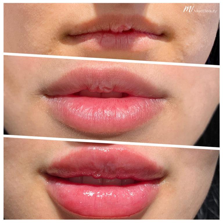 Lippen-aufspritzen-191214_BA.jpg