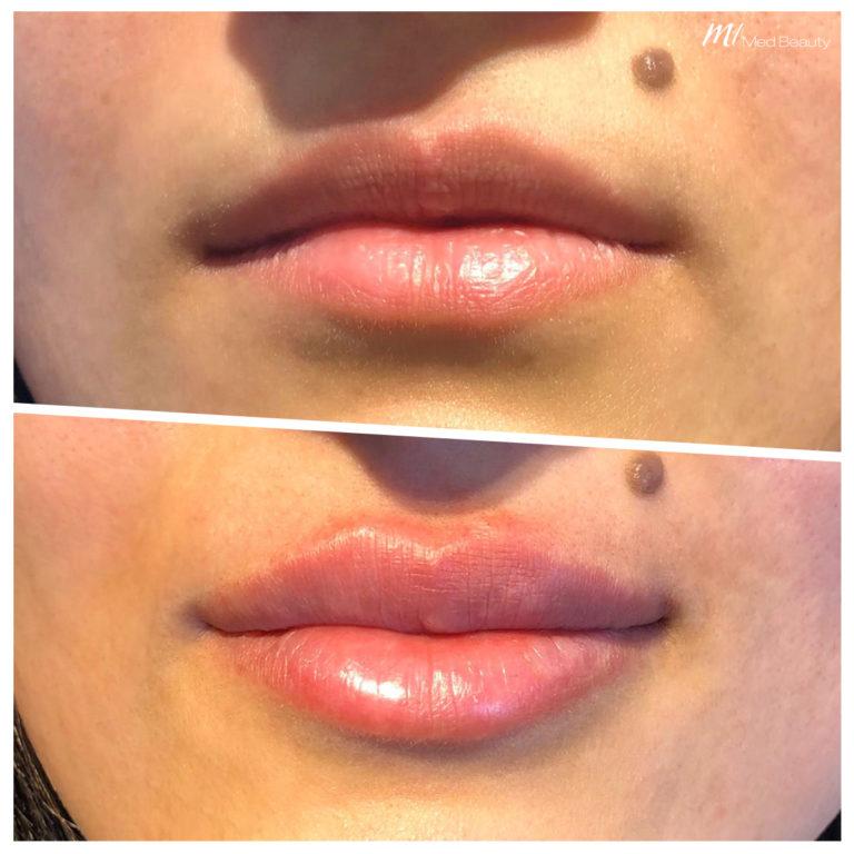 Lippen-aufspritzen-200320_BA.jpg