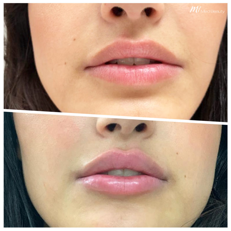 Lippen-aufspritzen-200527_BA.jpg