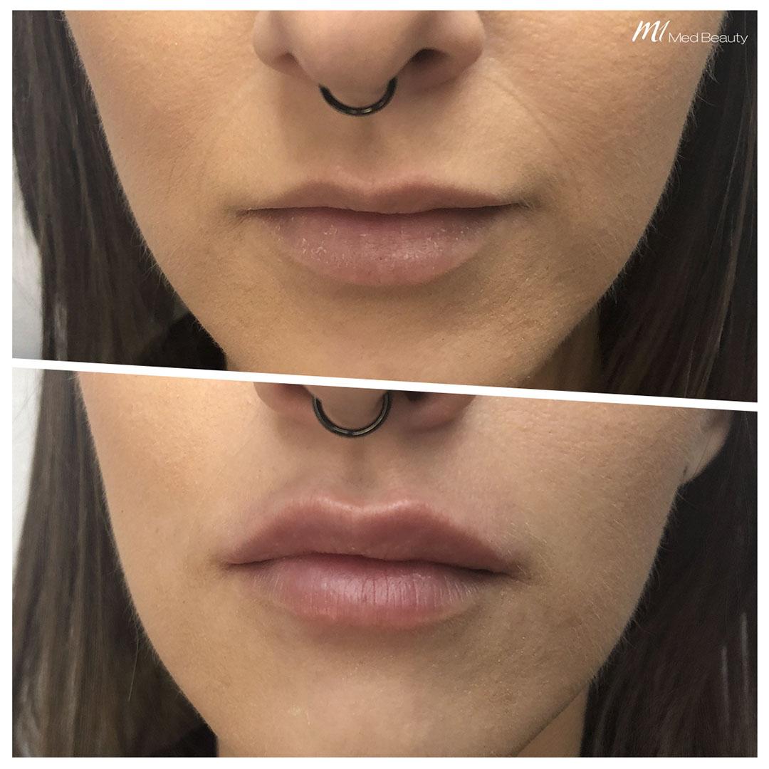 Lippenunterspritzung mit Hyaluron