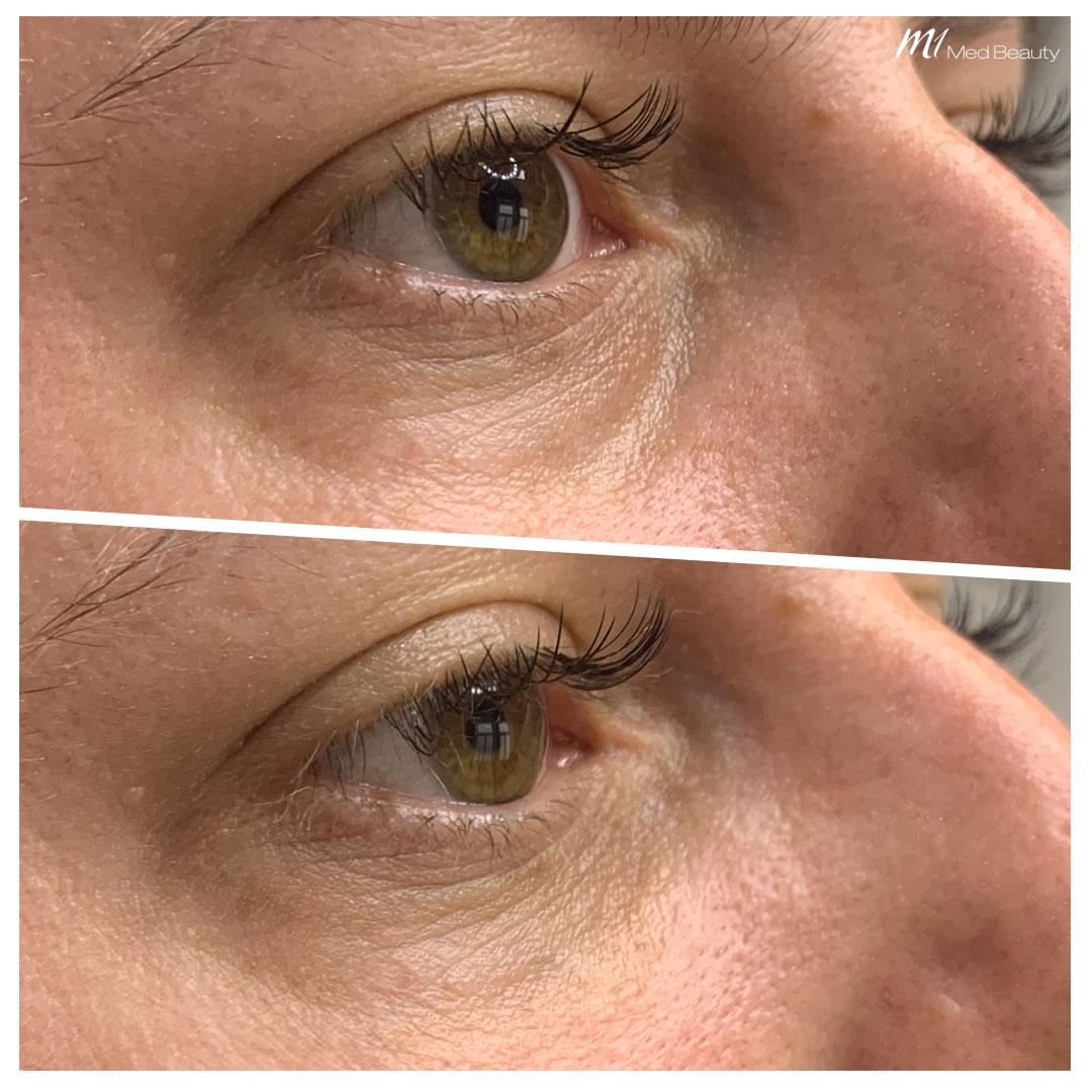 Unterspritzung-der-Tränenrinne Augenringe-unterspritzen