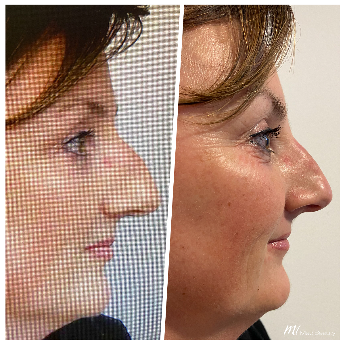 Nasenkorrektur-mit-Hyaluronsäure-Unterspritzung