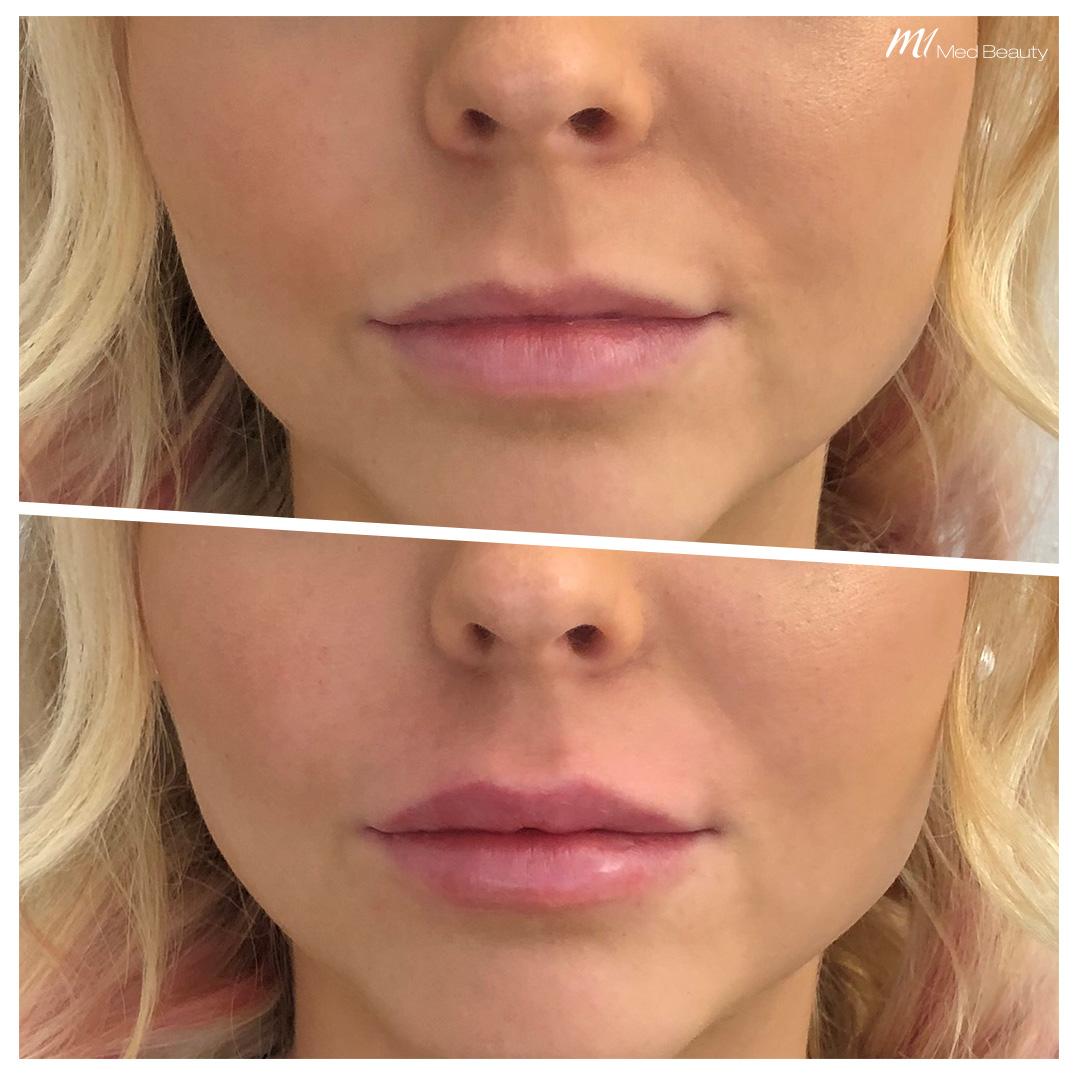 Lippenunterspritzung-mit-Hyaluron