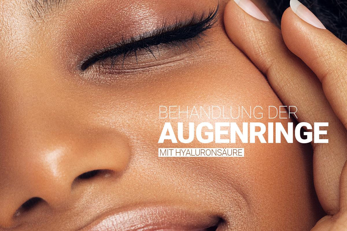 Behandlung von Augenringen mit Hyaluronsäure bei M1 Med Beauty